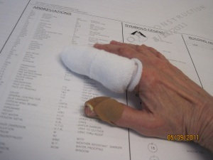 damaged finger -3