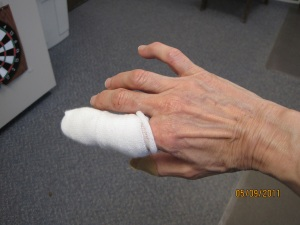 damaged finger - 2