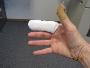 damaged finger